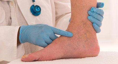 Qué son las venas varicosas?