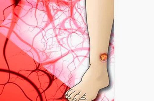 Ulcera venosa: Síntomas y cómo tratarla