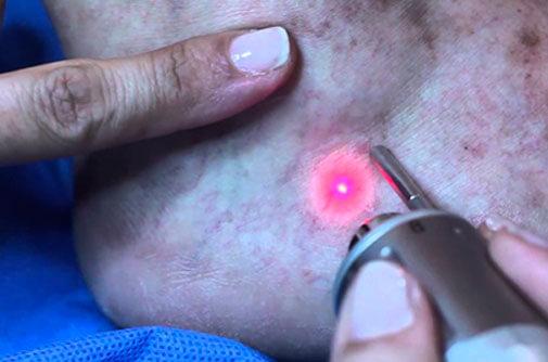 El tratamiento de microesclerotorapia