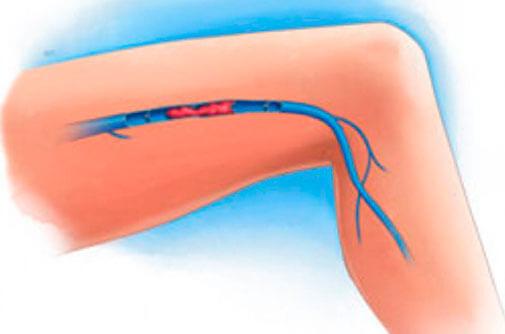 Tratamiento para trombosis venosa aguda
