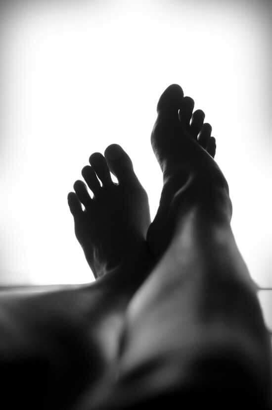 Quitar las varices de las piernas